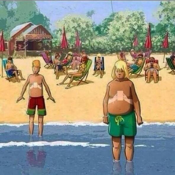 Le bronzage de cet été : no comment:)